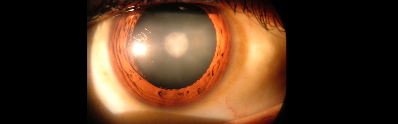 Stem Cells Regenerate Human Lens After Cataract Surgery, Restoring Vision